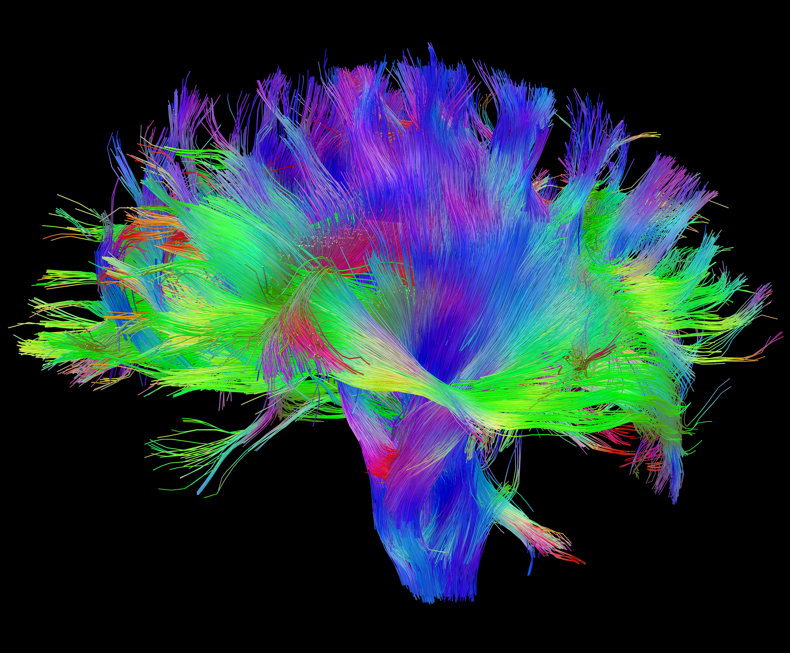 Can We Figure Out The Brains Wiring Diagram Neurobanter Diffusion Mri Of Human Brain Source Connectome Project