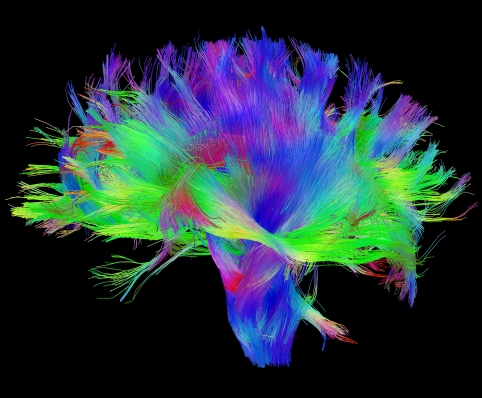 Diffusion MRI of the human brain.  Source: Human Connectome Project.