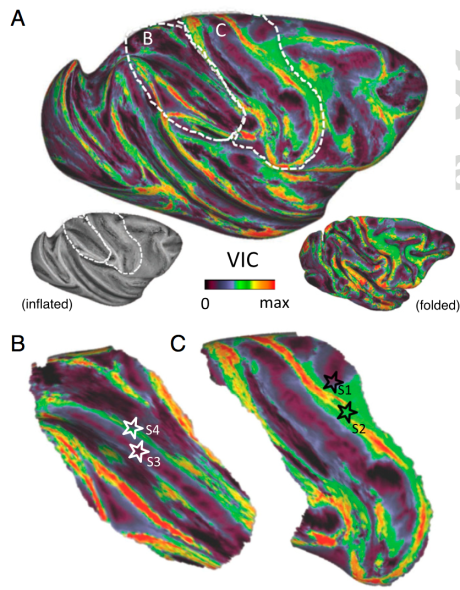 This image shows, on a colour scale, the 'reachability' of different parts of the brain by diffusion tractography.